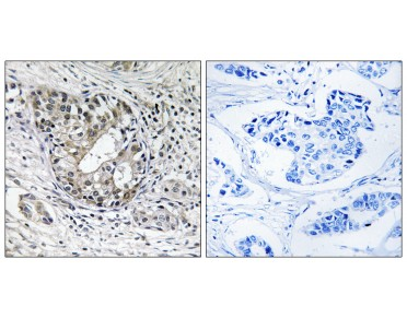 PNPT1 Antibody (OAAF04026) in human breast carcinoma tissue using Immunohistochemistry.
